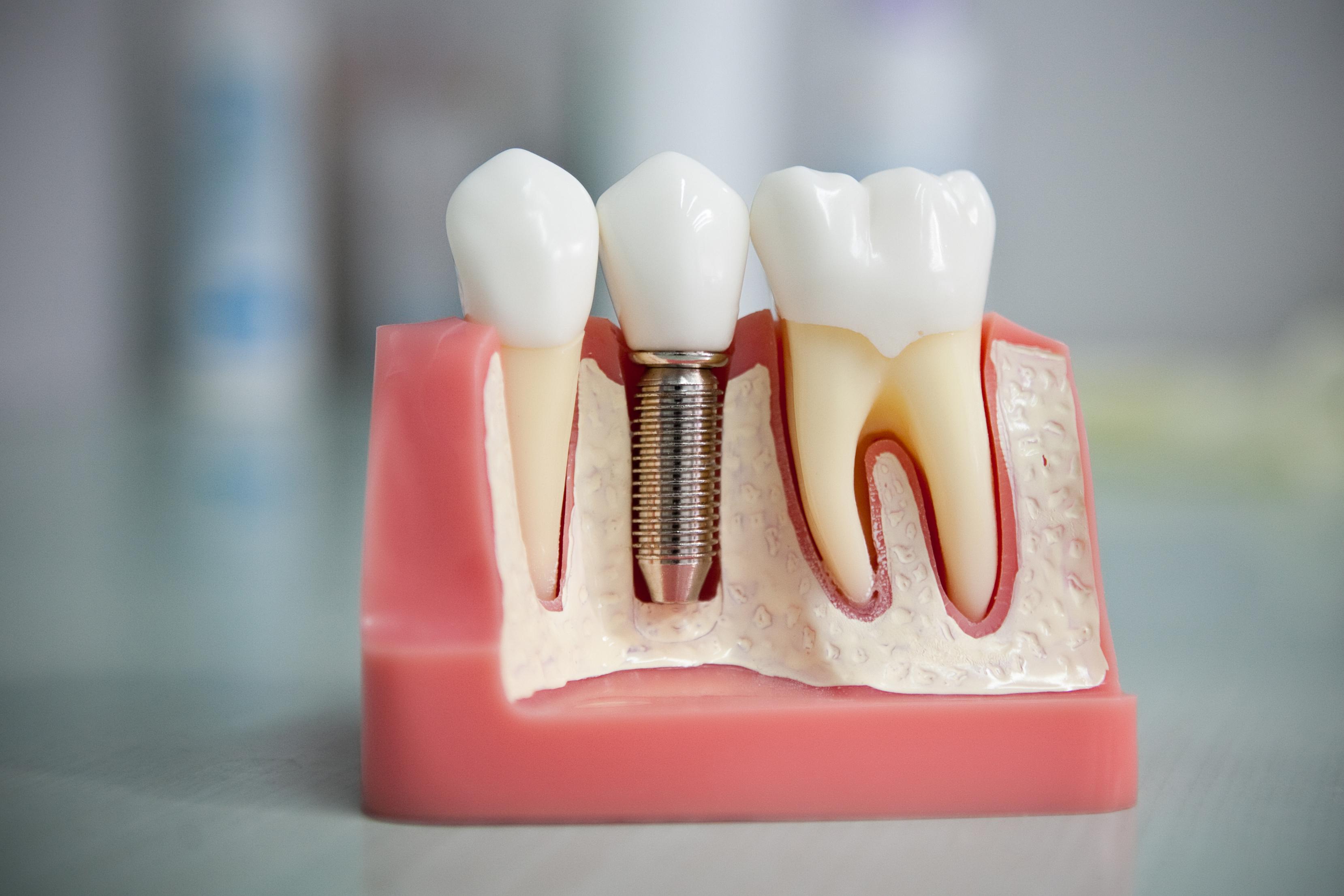 поиском стоматология протезирование фото много разговаривали